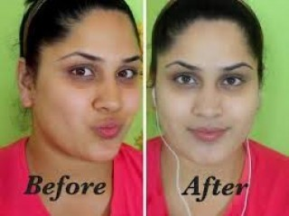 BEST SKIN WHITENING AND BLEACHING  PRODUCTS CALL  +27738432716